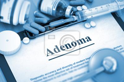 6c946ba28 Cuadro Adenoma Diagnóstico, Concepto Médico. Composición de los  medicamentos. Adenoma, concepto médico