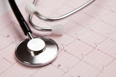Cuadro Informe médico y cardiograma