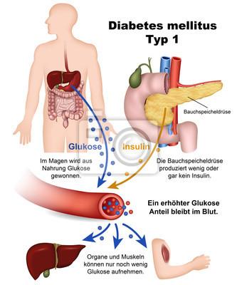 Una descripción de la diabetes tipo 1