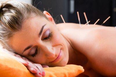 Fotomural Mujer con agujas de acupuntura en la espalda