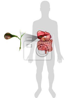 Cálculos en la vesícula biliar, anatomía brillante ilustración ...