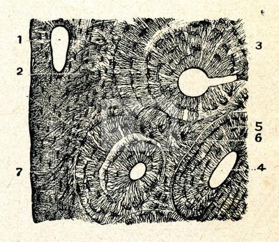 El hueso compacto (sistema de havers y osteocitos). carteles para la ...