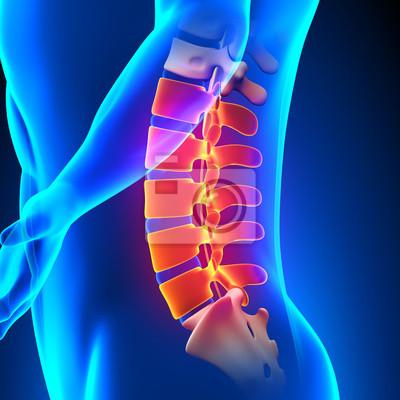 Concepto de columna lumbar anatomía del dolor vinilos para ...