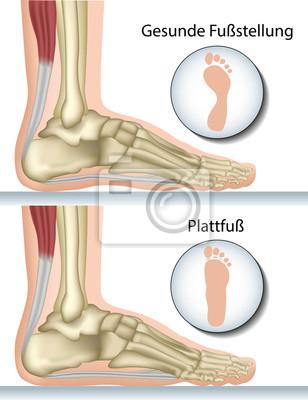 Pie plano, la anatomía del pie vinilos para portátiles • vinilos ...